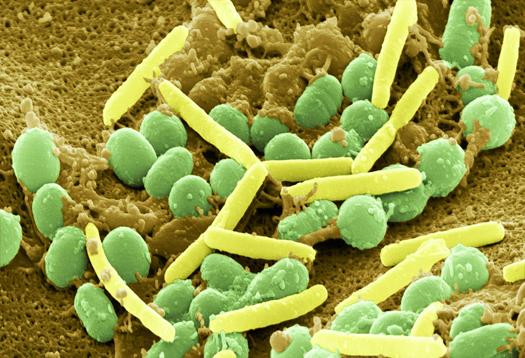 a brief introduction of the bacteria myxococcus xanthus a decomposer that moves and forms fruiting b