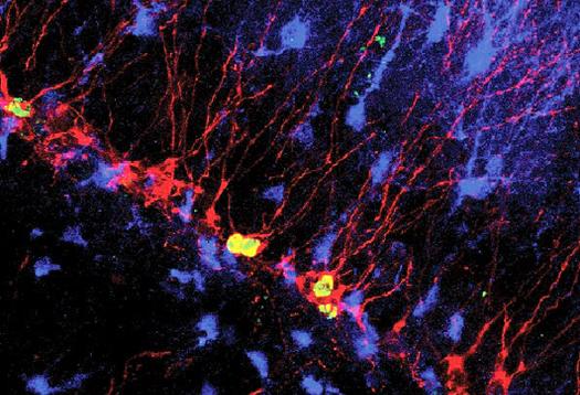 neuron_berkeley_1