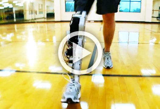 prosthetic_leg_video