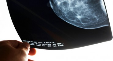 mammogram_results_1