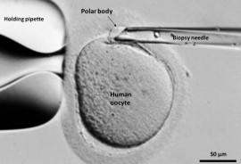 Fertility1_1