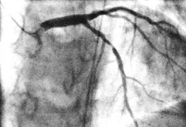 angiogram_1