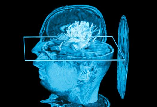 MRI_computing_1