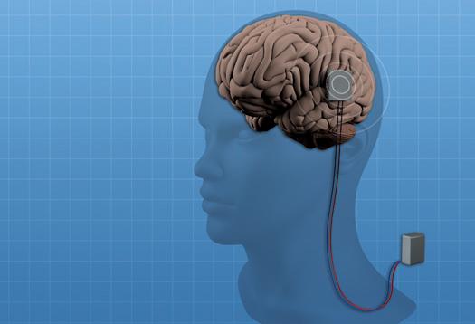epilepsy implant