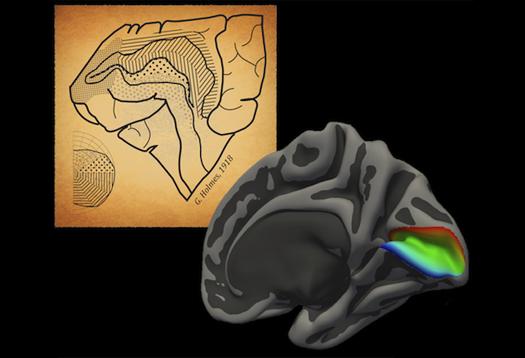 brainmap_525