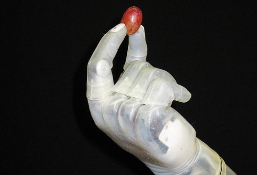 prosthetic_arm2_1