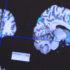 brain_scans_1