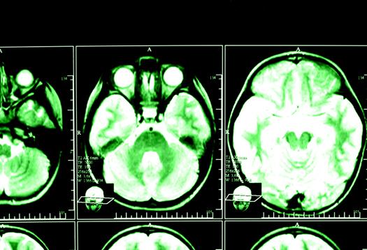 brain_xray_1