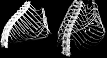 rib_cages_525