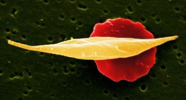 B0007446 Sickle-cell anaemia