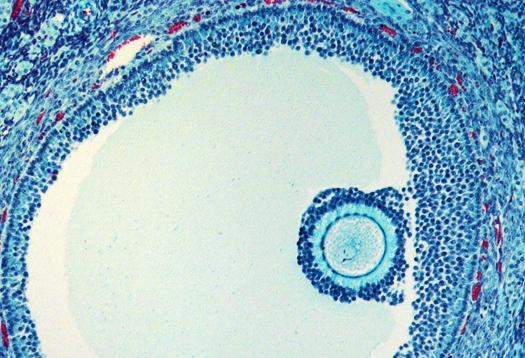 B0007266 Oocyte in follicle