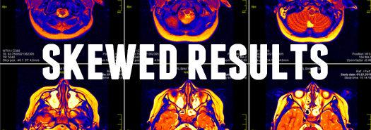 skewed_results_MRI_525