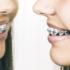 braces_mirror_525