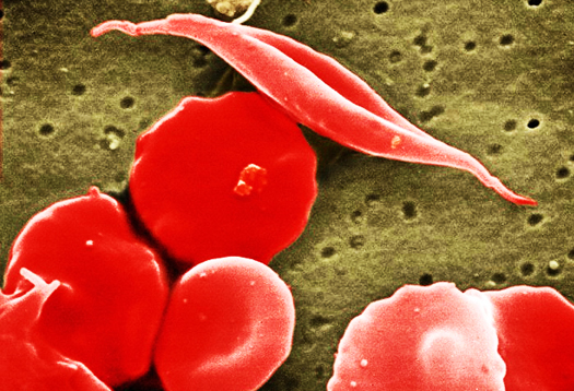 sickle_cell_525