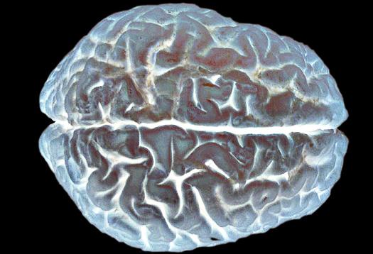 cerebral cortex_525