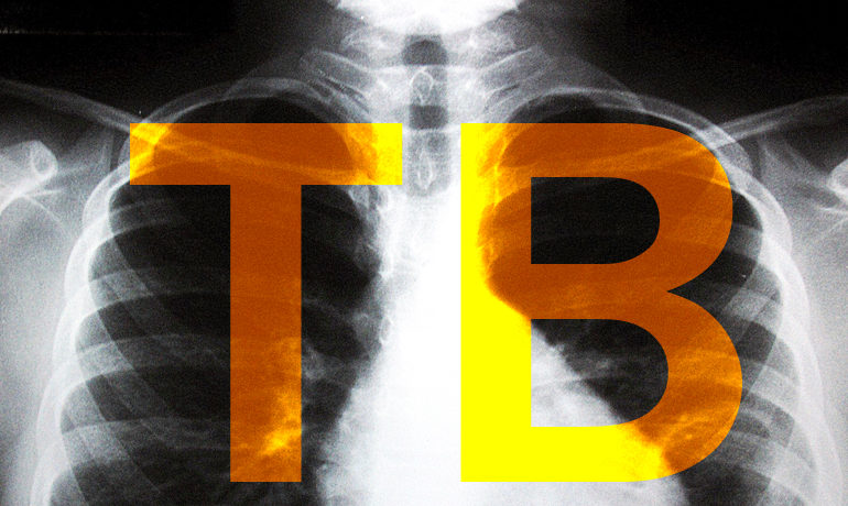 Inhibiting an enzyme kills the bacterium that causes tuberculosis. Researchers say the finding could point the way to new drugs to treat TB and other infections that are becoming resistant to traditional antibiotics. (Credit: Luu Cruz/Flickr)