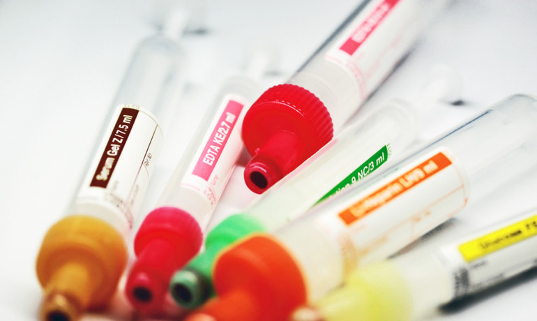 """If these markers are absent and TET2 gene is not mutated, then the 50 percent of leukemia patients without this marker would be spared harsher treatment such as high-dose chemotherapy or bone marrow transplants,"" says Jun Lu. (Credit: ""blood test tubes"" via Shutterstock)"