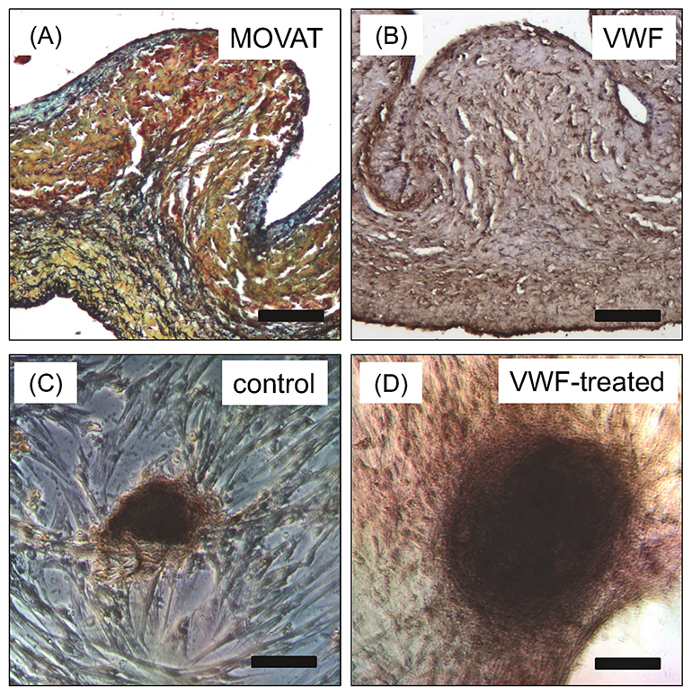 At top left is a sample of an elderly pig valve; at right, staining reveals the accumulation of VWF protein throughout the tissue. At bottom are porcine aortic valve interstitial cells not treated with endothelial cell VWF (left) and treated with endothelial cell VWF (right). The VWF appears to prompt formation of larger calcific nodules. (Credit: Integrative Matrix Mechanics Lab/Rice University)
