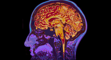 Researchers used MRI scans to quantify brain tissue volume, a critical measurement of the progression of multiple sclerosis and other diseases. (Credit: iStockphoto)