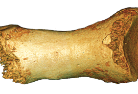 Above, the toe bone of a Neanderthal woman, recovered from a cave in Siberia. DNA extracted from the bone was used to produce the most complete sequence so far of the genome of this group of early humans. (Credit: © Bence Viola via the Max Planck Institute)