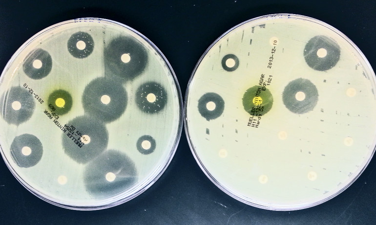 "Unlike previously identified superbugs that are usually from multiple strains, these E. coli bacteria belong to just one closely related clone, says Evgeni V. Sokurenko. ""We now know that we are dealing with a single enemy, and that by focusing on this super-clone we can have a substantial impact on this worldwide epidemic."" Above: This antibiogram compares the resistance of the H30-Rx strain to another strain of E.coli that also infects the urinary tract. (Credit: Mariya Billig)"