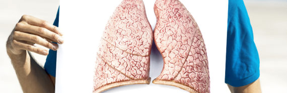 """""""In the longer term, we hope to use this technology to make an autologous lung graft,"""" says Hans-Willem Snoeck. """"This would entail taking a lung from a donor; removing all the lung cells, leaving only the lung scaffold; and seeding the scaffold with new lung cells derived from the patient. In this way, rejection problems could be avoided."""" (Credit: iStockphoto)"""