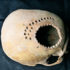 Some 900 years ago, a Peruvian healer used a hand drill to make dozens of small holes in a patient's skull. (Credit: Danielle Kurin/UC Santa Barbara)