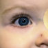 Contact lenses are better long term than implanted lenses for babies who have had cataract surgery. Above, an infant wears a rigid gas permeable contact lens in the right eye. A patch covers the normal left eye to strengthen vision in the right eye. (Credit: Buddy Russell)