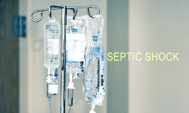 "When treating sepsis, ""regardless of the method used, patient survival was essentially the same in all three treatment groups, indicating that sepsis patients in these clinical settings were receiving effective care,"" says Sarah Dunsmore. (Credit: ""IVs"" via Shutterstock)"