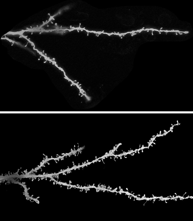spines on neurons