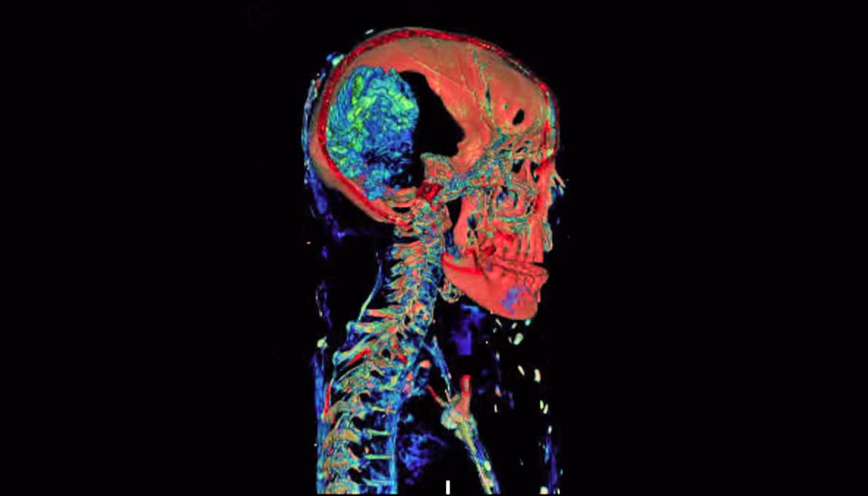 scan of mummy skull
