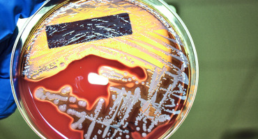 Staphylococcus aureus on a petri dish