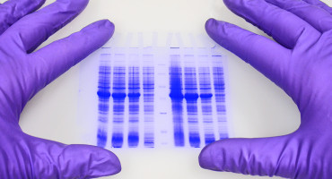 DNA sequencing gel