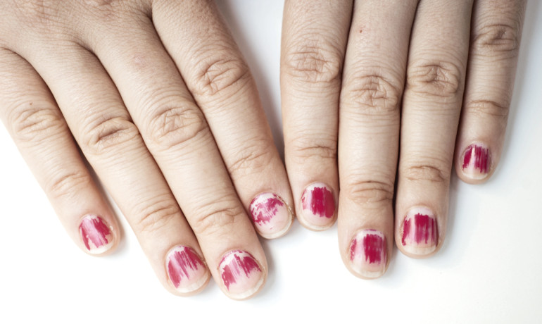 fingers with chipped nail polish