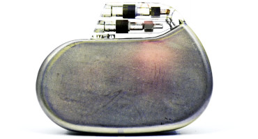 pacemaker medical implant