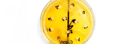 yellow petri dish - Clostridium difficile