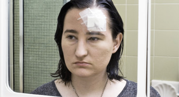 woman with concussion looks in mirror