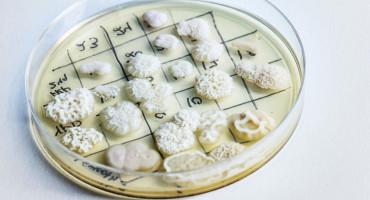yeast strains in petri dish