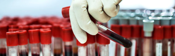 blood samples in lab