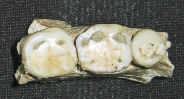 ancient human teeth