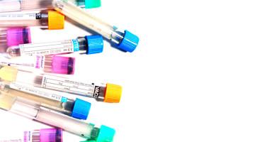 vacuette medical tubes
