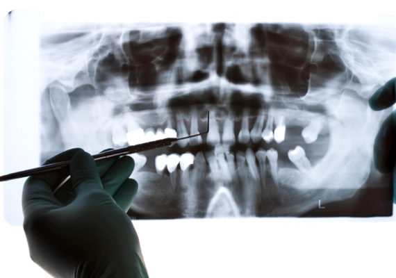 dental x-ray and gloved hands