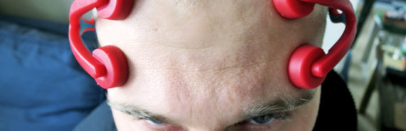 man with electrodes on his forehead