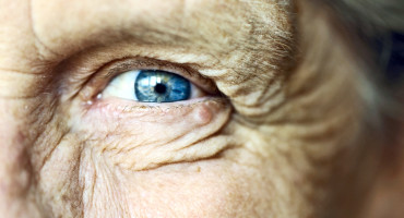 older person's blue eye