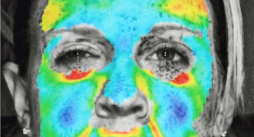 botox-type results in heat map