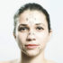 woman prepped for plastic surgery