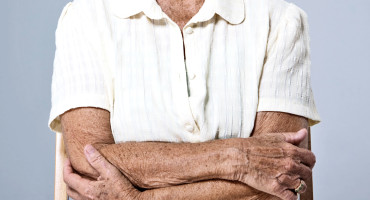 older person crosses arms - melanoma patient?