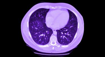 CT scan of with heart