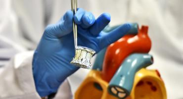 VeloX heart valve