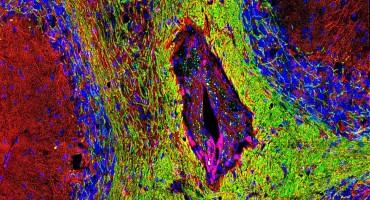 de-myelinated lesion